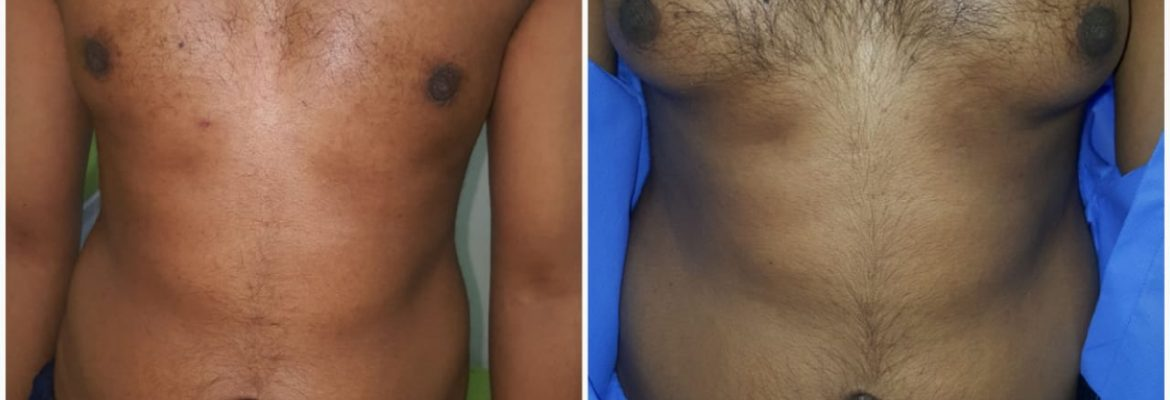 Men boobs reduction surgery in Lahore
